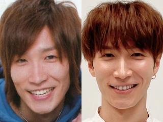 渡辺翔太の昔と現在の比較画像,顔が変わったのは整形か