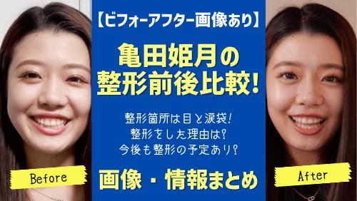 亀田姫月の整形ビフォーアフター画像